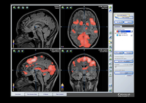 Overview of brainlab interface