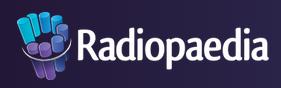 Radiopaeida